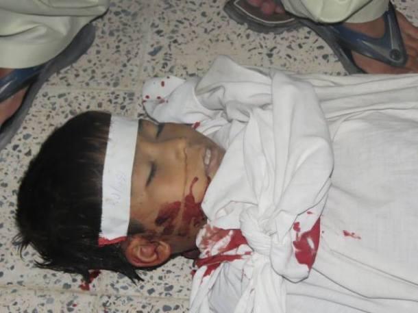 Kid killed in Aliabad attack.
