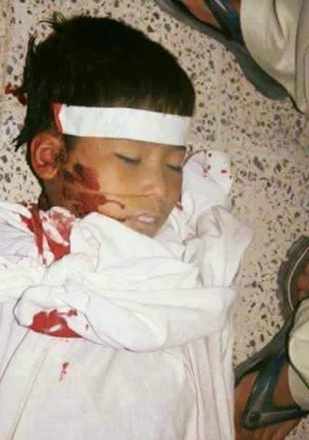 This nine years old boy's throat was slit in Zabol province, Afghanistan.